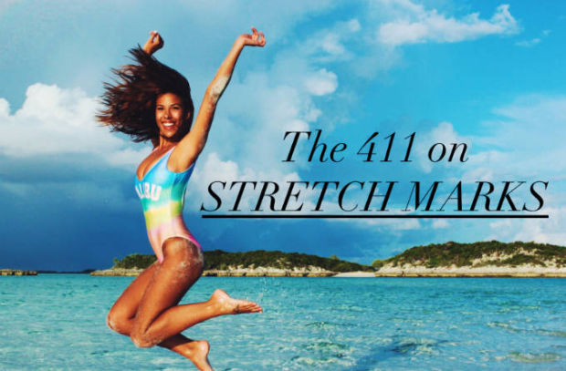 Bye-Bye Stretch Marks?